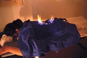 Hou Liao, termoterapie