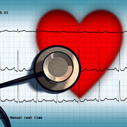 inima, electrocardiograma