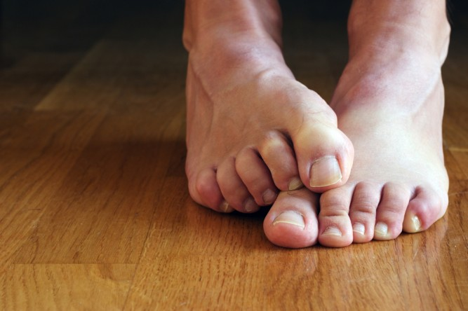 ciuperca-piciorului