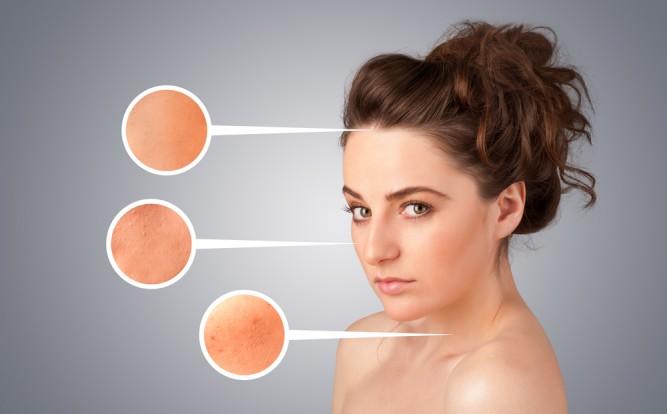 piele-acnee