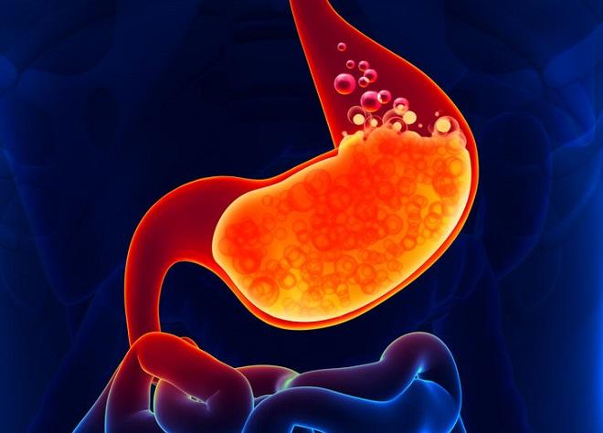 remedii pentru arsurile la stomac