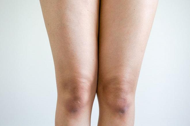boala la genunchi