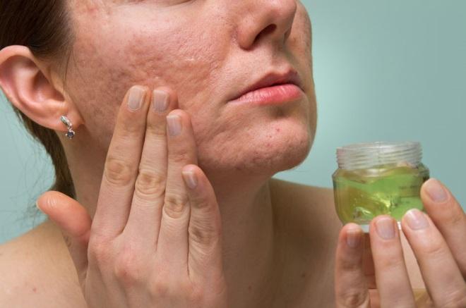 remedii naturiste impotriva cicatricelor