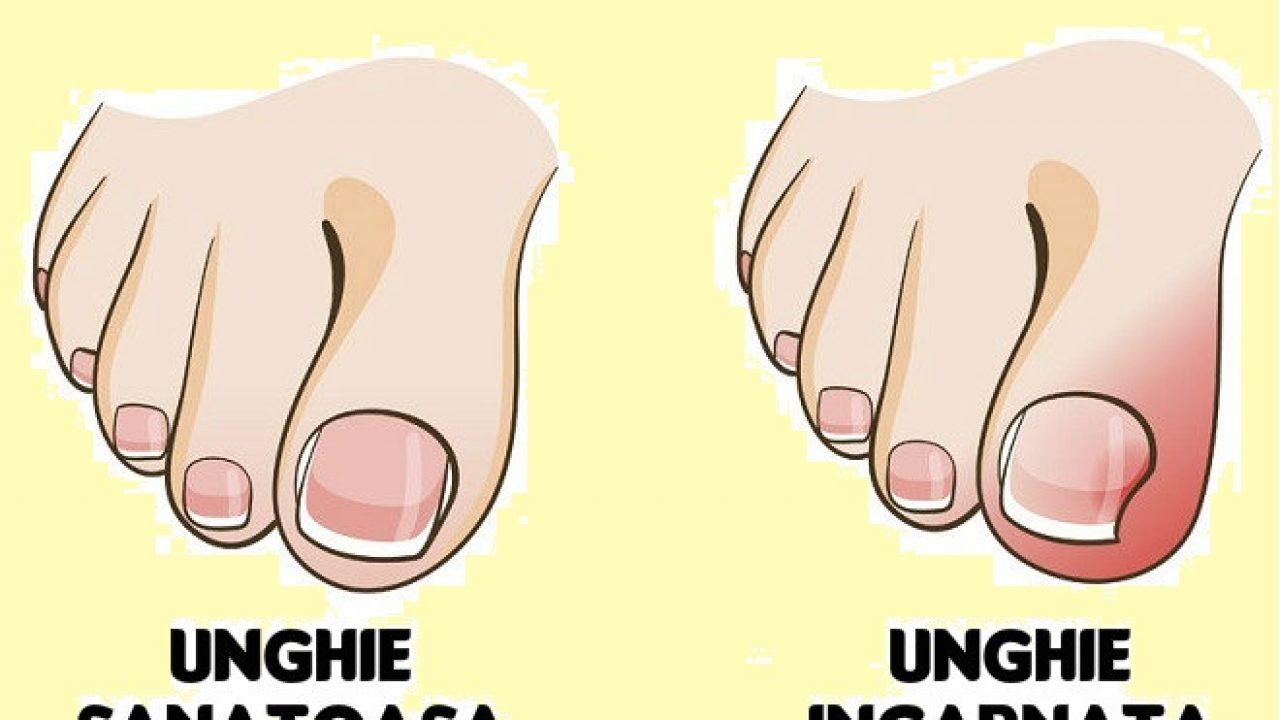 Scapa de unghia incarnata fara doctor