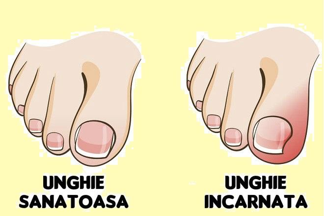 cum sa ingrijesti unghiile incarnate