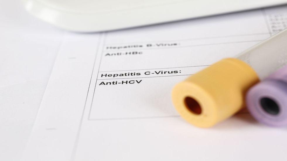 hepatita C tratament virus