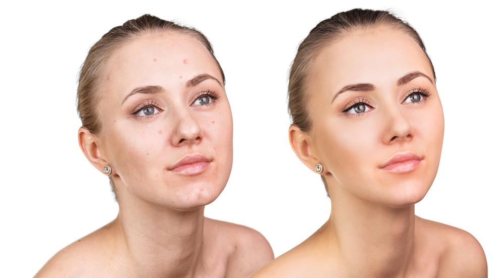 solutie-pentru-acne