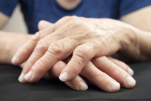 cum se vindecă artrita reumatoidă cum se tratează dureri articulare după administrarea de prednisolon
