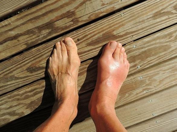 picior umflat cu entorsă
