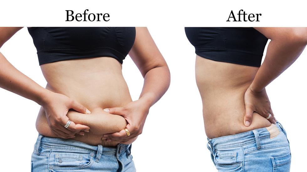 beneficii de pierdere în greutate de 20 de kilograme