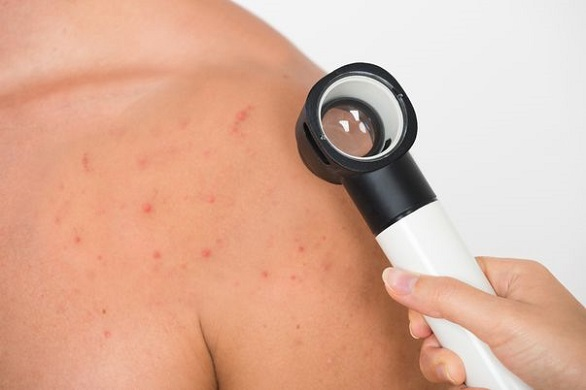 control dermatologic
