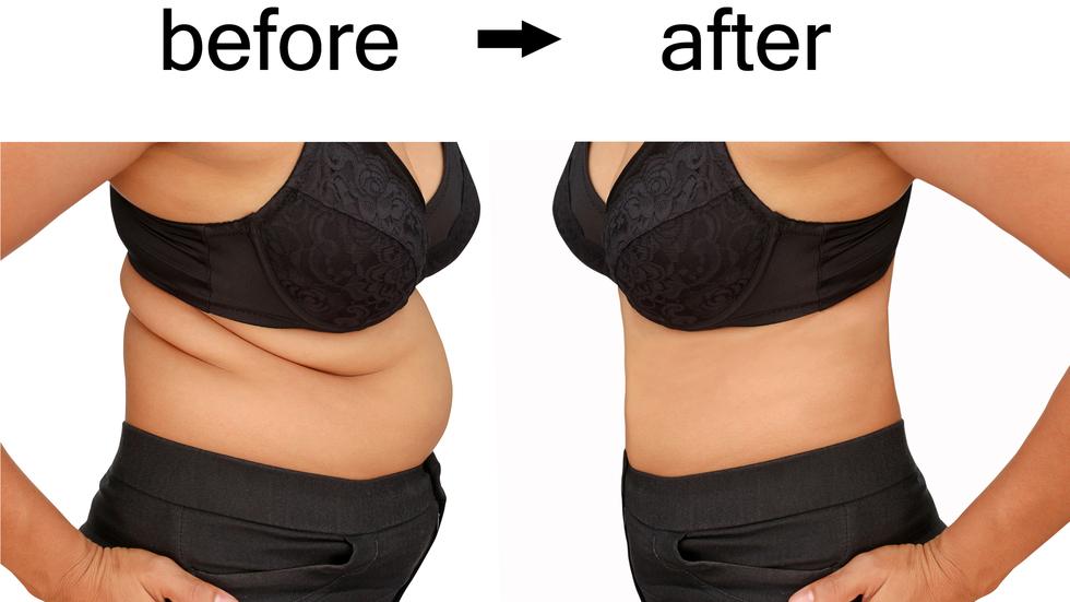 pierderea în greutate îmbrăcăminte la domiciliu ajutând copilul supraponderal să piardă în greutate