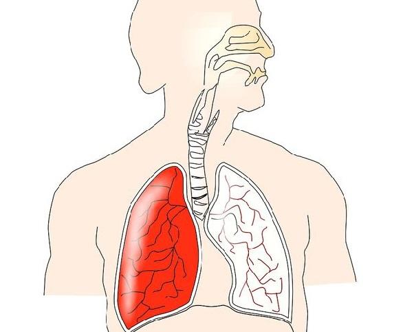 cancer la plamani noduli