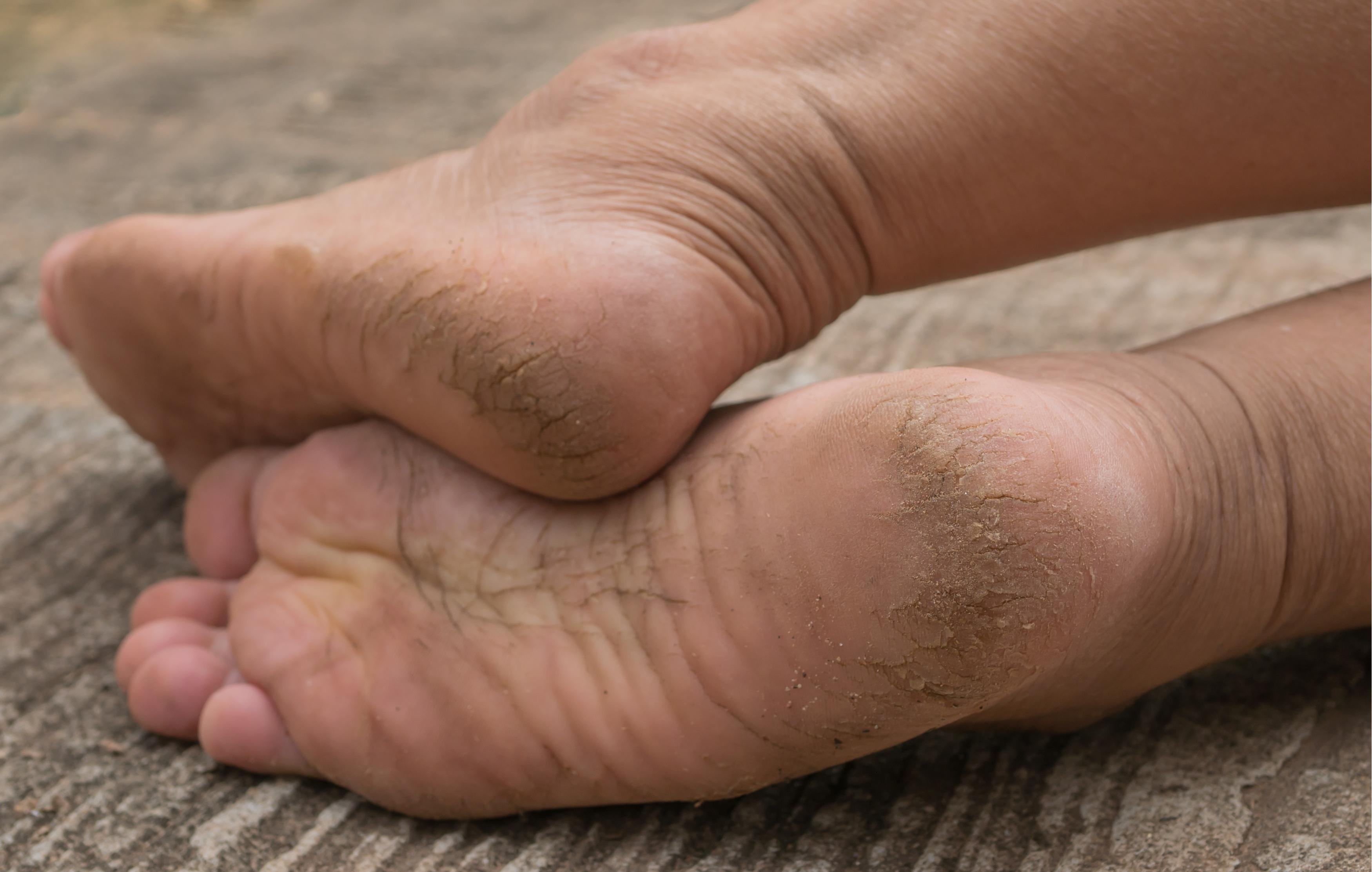 cum se vindecă picioarele uscate