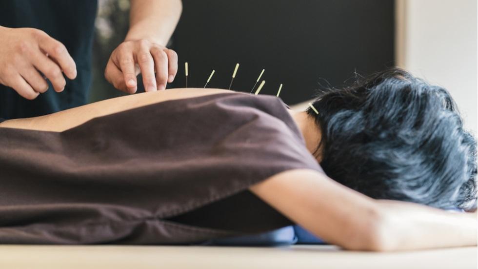 cum te poate ajuta acupunctura să slăbești