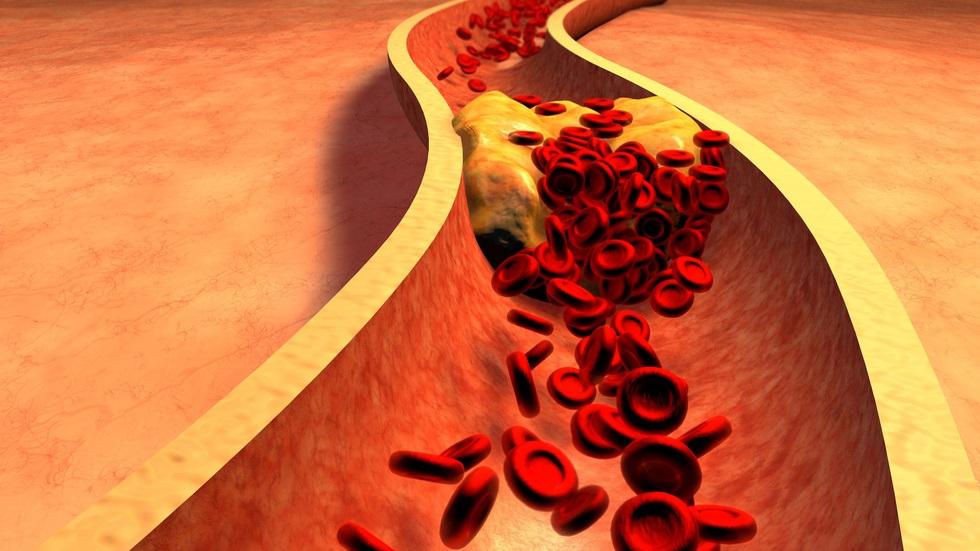 Alimentele care îți curăță arterele