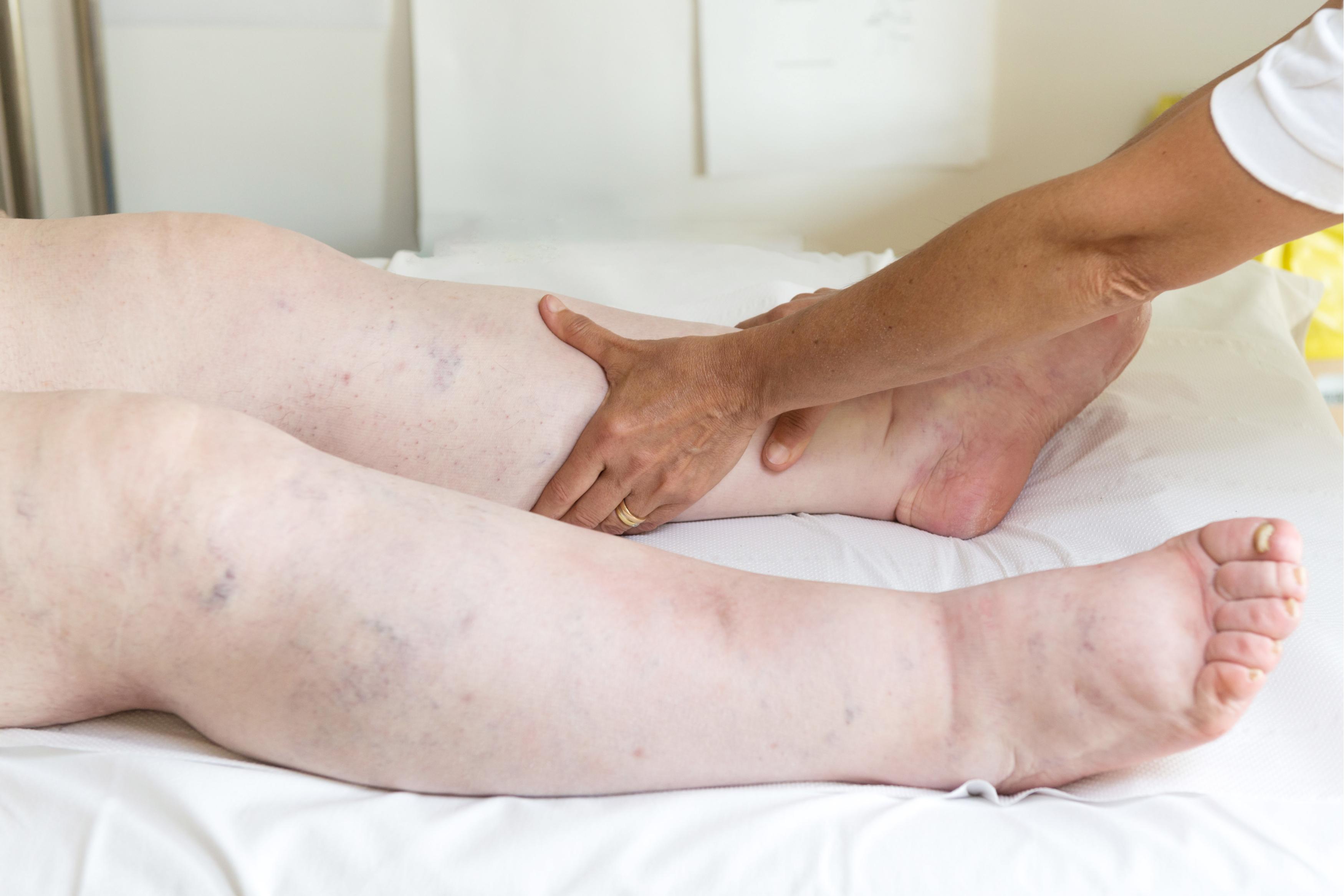 medicamente pentru glezne și picioare umflate