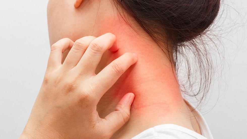 tratament naturist dermatita atopică
