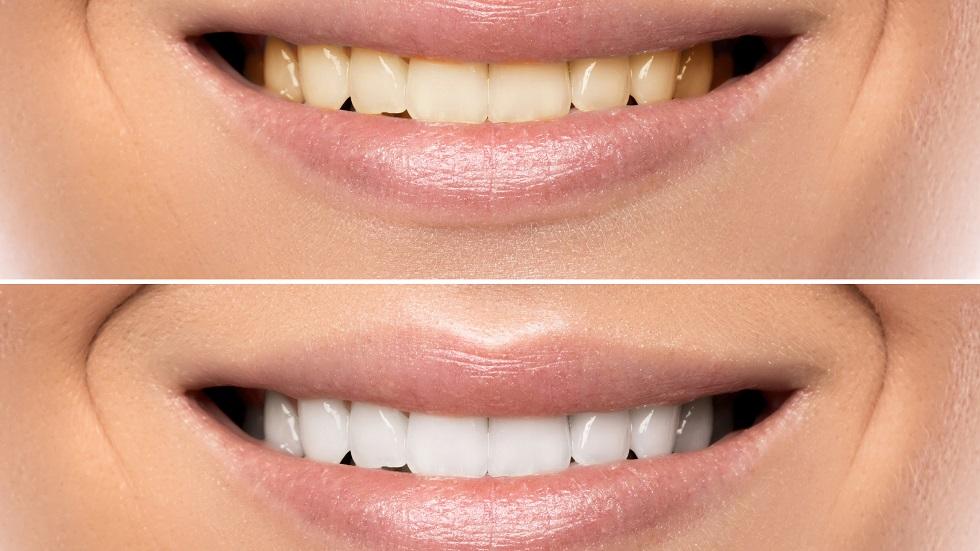 Amestecul care elimină tartrul și îți albește dinții
