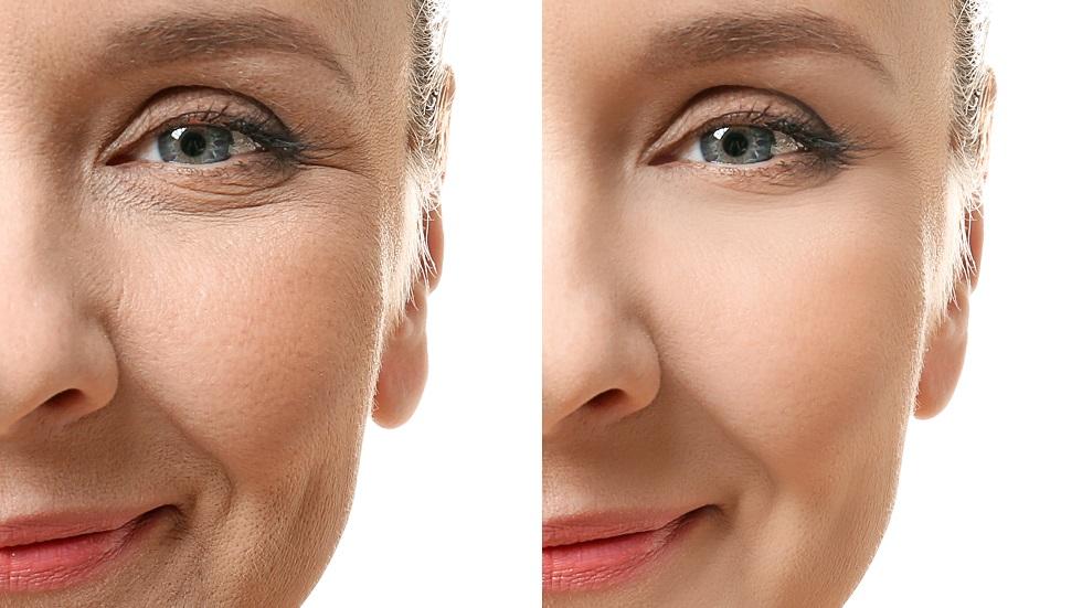 Masca de față care te ajută să estompezi ridurile