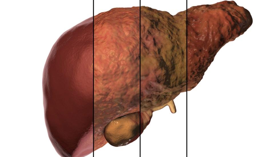 ce este fibroza hepatică