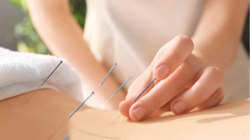 Bolile pe care le poți trata cu ajutorul acupuncturii