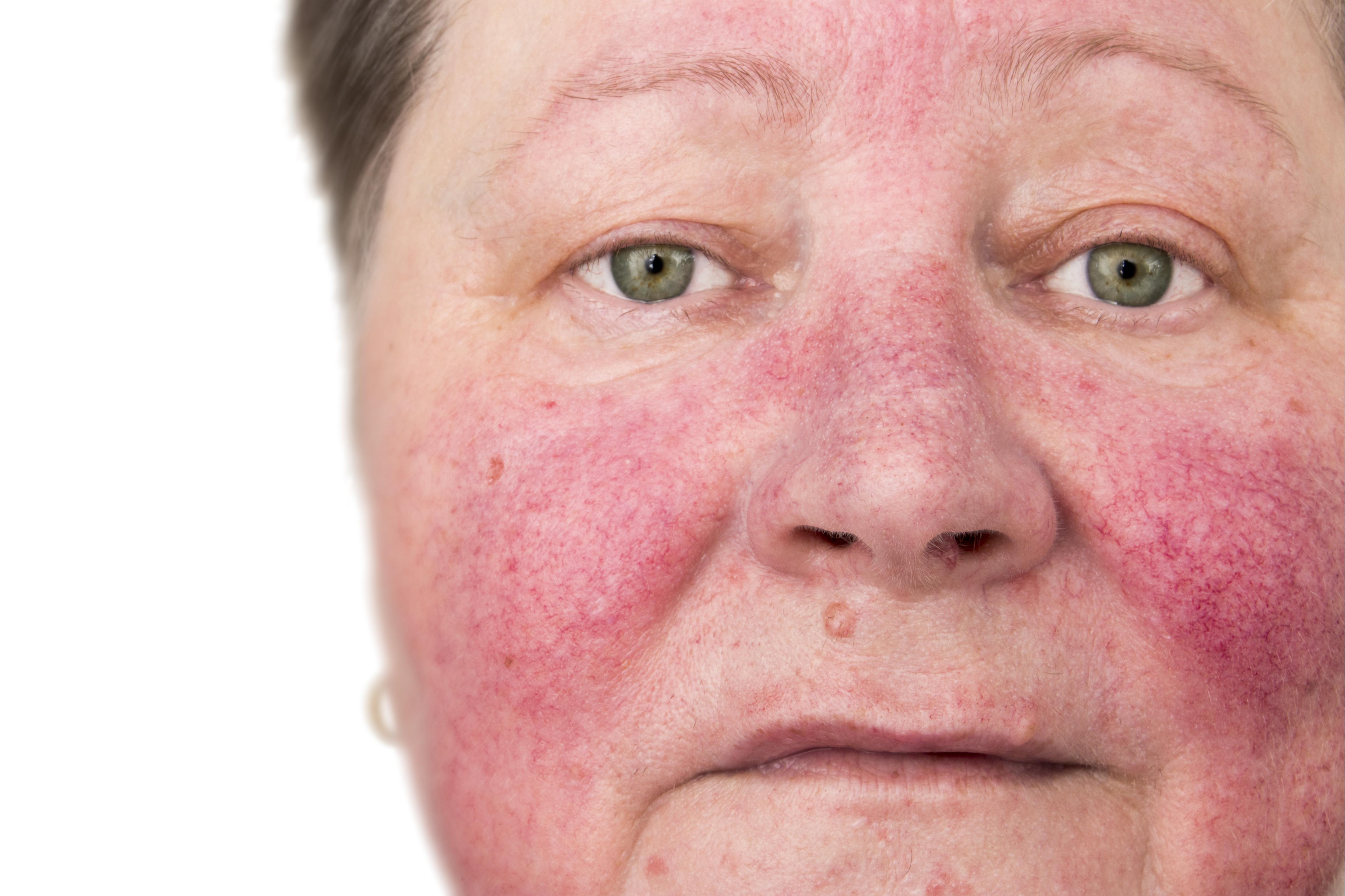 tratamentul feței pe față împotriva negilor plantare