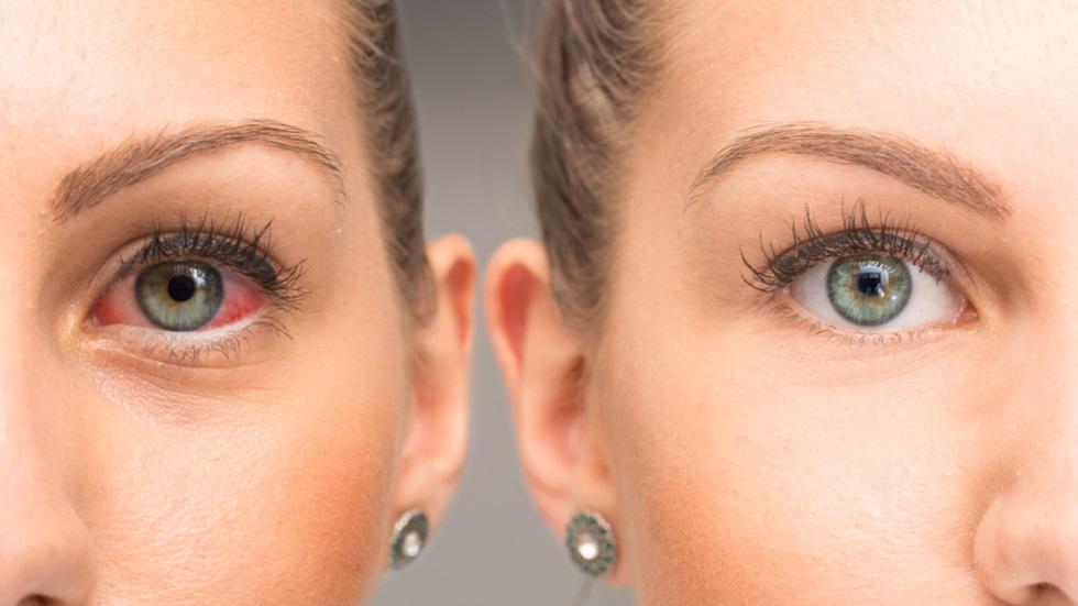 ce afecteaza ochii cu ajutorul vederii, oamenii pot