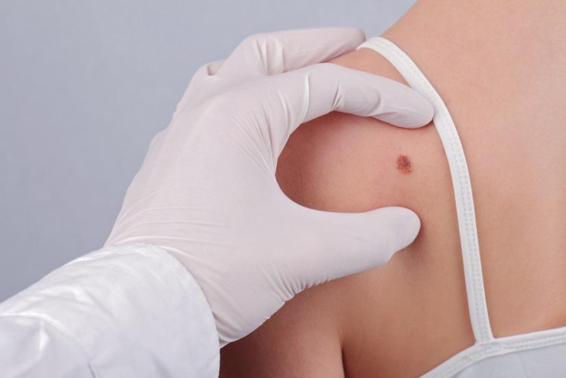 Cum arata melanomul