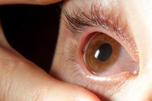 Problemele cu sănătatea ochilor la copii