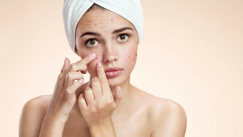 Trei remedii naturale care te vor ajuta să scapi de acnee