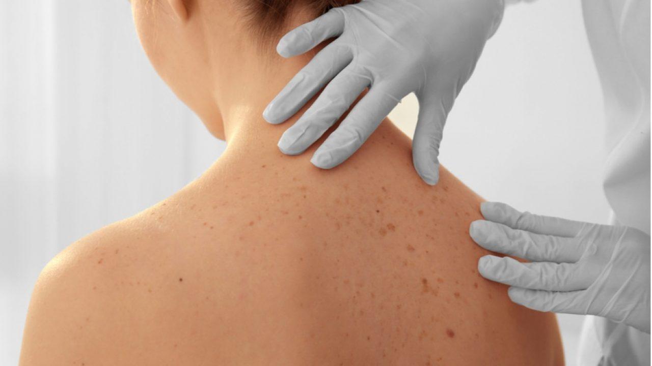cancer de piele bube