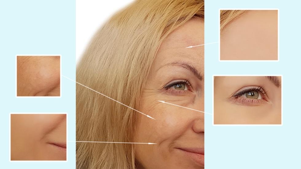 cel mai bun tratament natural împotriva ridurilor și petelor pigmentare