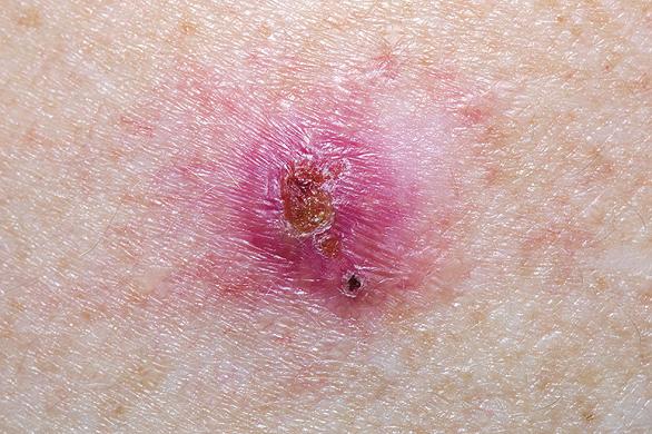 cancer de piele bube virus del papiloma senos