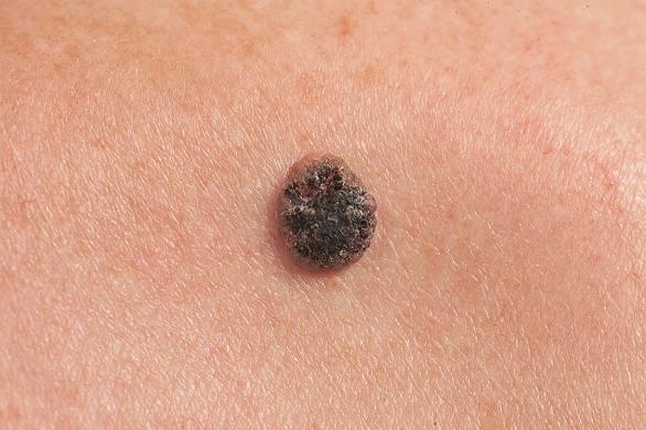 cum arată cancerul de piele