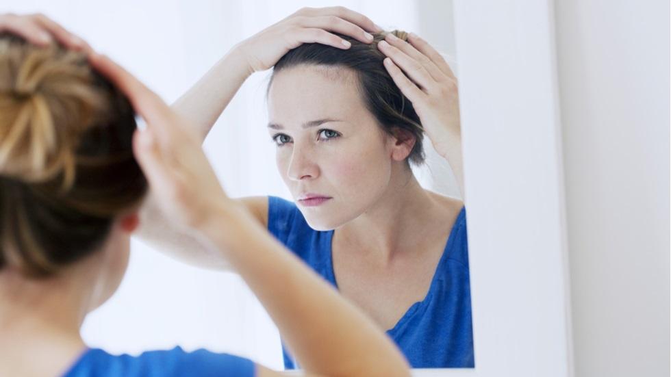 Mătreață sau scalp uscat