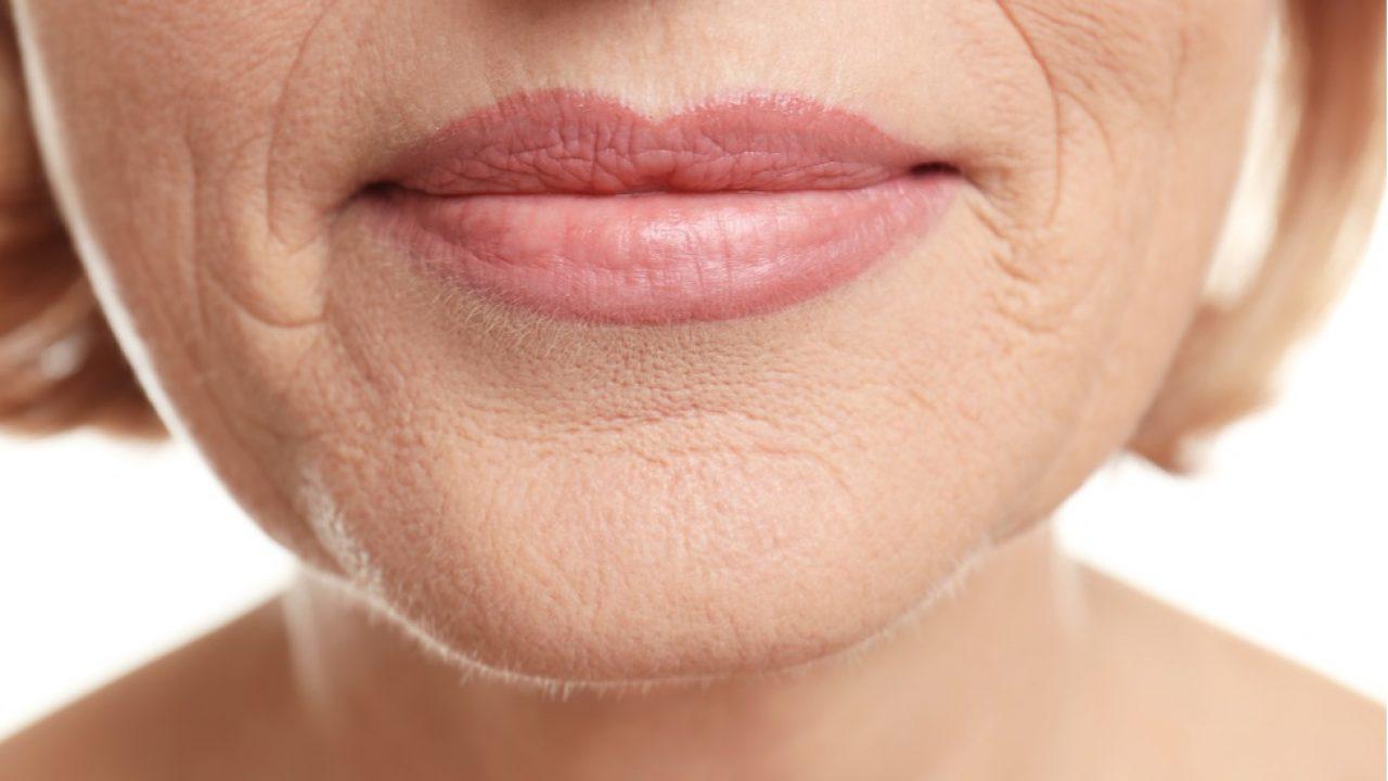 cum să îndepărtați grăsimea în jurul gurii
