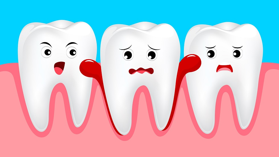 de ce sângerează gingiile