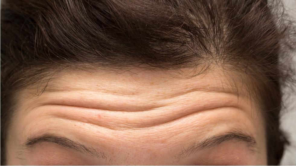Ridurile de pe față pot fi semnul unei afecțiuni grave