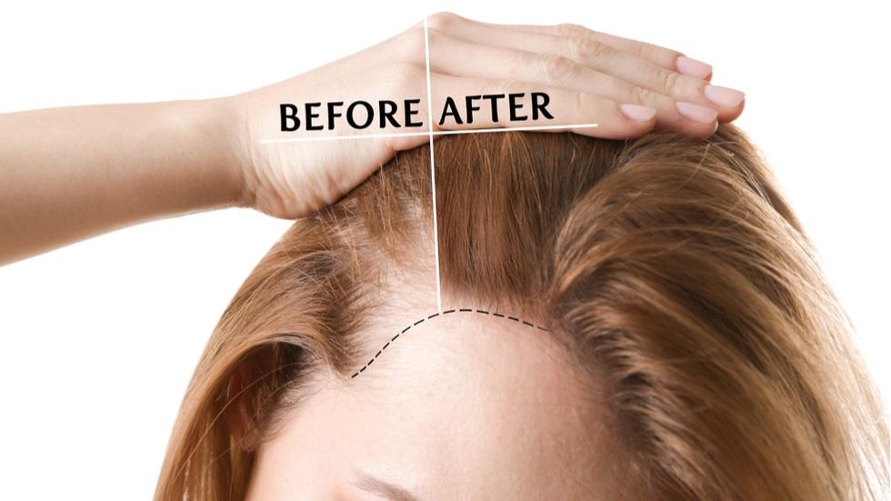 masca naturală care oprește căderea părului