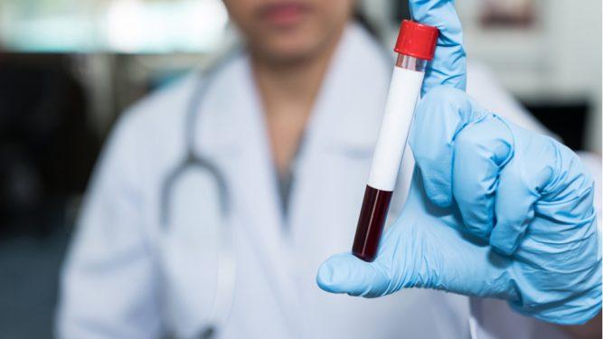 Infecţia cu virus hepatitic C (VHC)