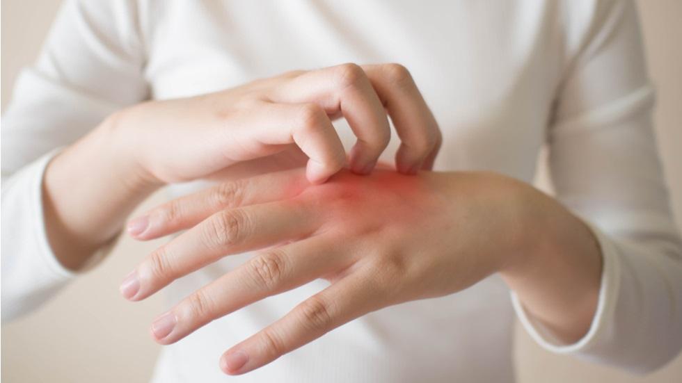 poate scădea în greutate ajută la eczeme pierderea in greutate a pneumoniei