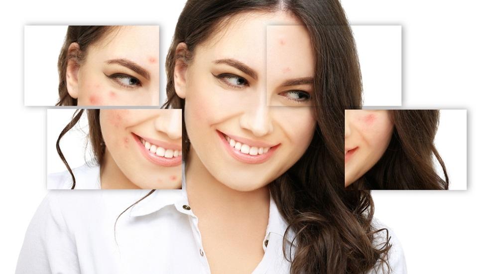 Cum previi acneea