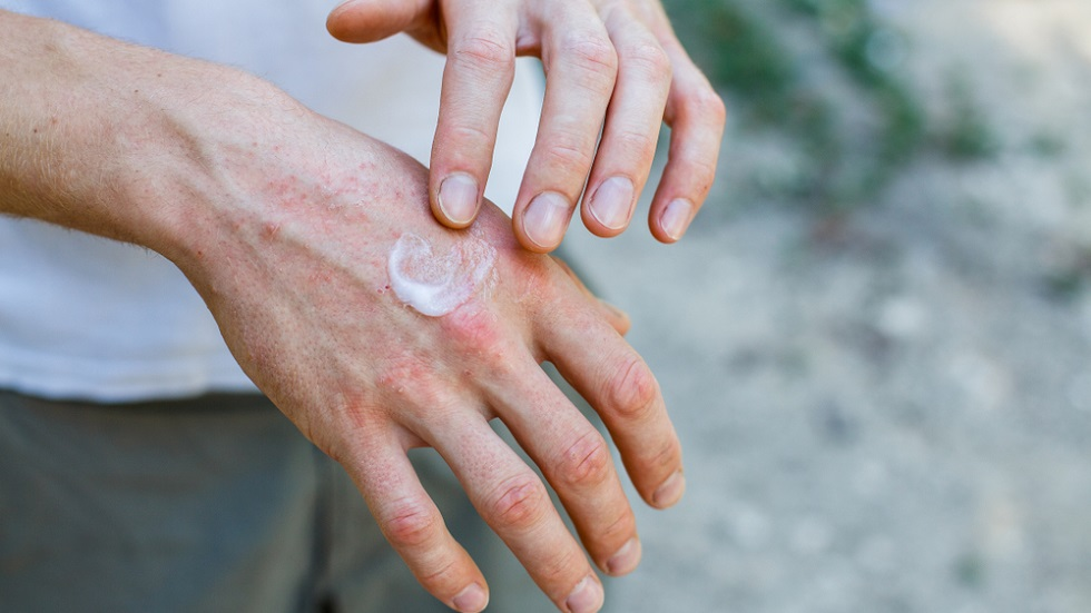 Aproximativ 5% dintre români suferă de psoriazis