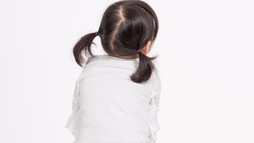 fetiță cu Sindrom Down model