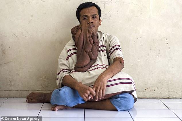 Un bărbat trăiește cu o tumoră facială care îi atârnă până la stomac